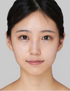 下颌角整形案例对比图