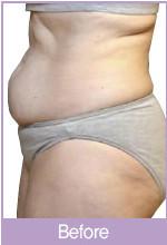 激光瘦腹部对比图