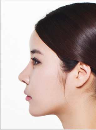 韩国A特医院隆鼻手术对比图