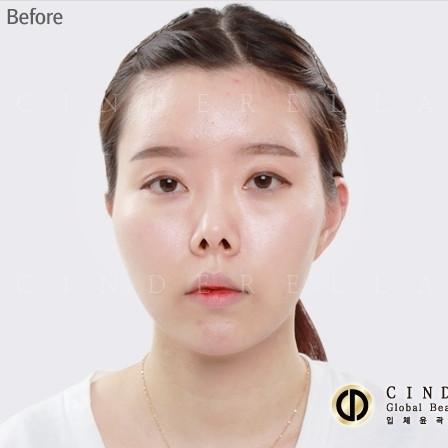 韩国灰姑娘整形医院鼻部修复对比图