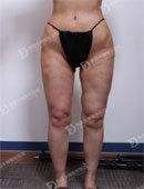 在韩国女神整形做完腿部吸脂修复后的效果_术前