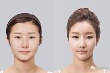 韩国假体隆鼻哪家医院风格更自然?
