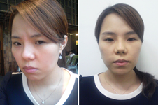 做眼鼻整形+脂肪填充后,面部变化真的好大!