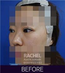 韩国Rachel整形医院双眼皮修复案例对比图