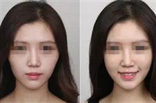 玻尿酸,能打造一张网红脸,你知道吗?