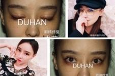 韩国擅长眼修复医院:ACE整形和枓翰、清潭第一该选谁?