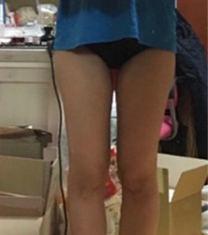 韩国美线吸脂医院瘦大小腿案例图_术后