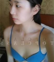 韩国TOPclass眼鼻隆胸手术前后照片