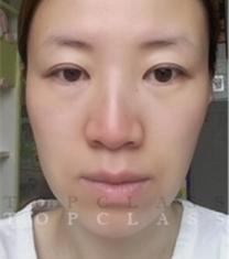 韩国topclass立体隆鼻+面部提升手术前后对比照片