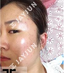韩国jayjun痘肌治疗前后对比案例_术前