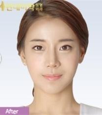 韩国现代美学眼鼻手术+面部轮廓整形前后照片