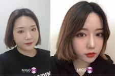 韩国migo整形高汉雄眼综合案例日记分享
