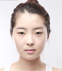 韩国dream轮廓整形+脂肪填充案例图