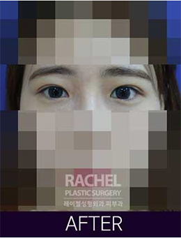 韩国蕾切尔整形外科双眼皮手术对比案例