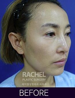 韩国蕾切尔整形外科面部脂肪填充手术对比案例