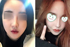 韩国明星去的鼻整形医院有哪些?朱诺、nano、4月31在列吗?