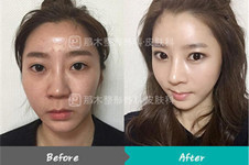 韩国首尔有名的鼻整形医院名字汇总:nano、那木trend在其列