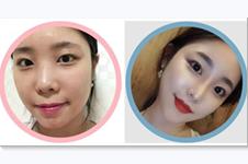 韩国TJ整形张宅镇擅长眼鼻整形吗?真人恢复案例图解析!