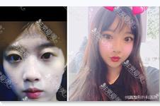 韩国纯真精致真我鼻的mesh假体是什么?VS膨体硅胶哪个隆鼻好