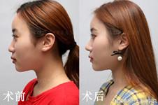 韩国高恩世上李炳浍做鼻子怎么样?鼻小柱萎缩能修复吗?