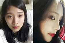 韩国Kowon整形医院做鼻子咋样?案例告诉你和中国的不同点!