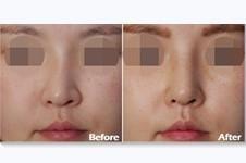 韩国美作整形医院地址在哪?擅长鼻部整形和修复吗?