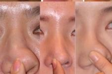 韩国医院垫鼻尖手术怎么做,术后特点有哪些?