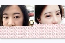 金孝宪双眼皮在韩国出名吗?为什么不在韩国做?