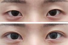 双眼皮有疤痕怎么修复?韩国grida整形医院方法+案例解析!