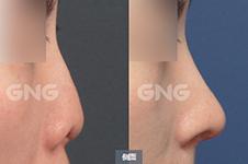 怎么避免包膜挛缩?挛缩鼻修复一次后还会再复发吗?
