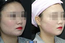 韩国皮肤管理好医院收录(二):JAYJUN医院VS首尔丽格哪家好
