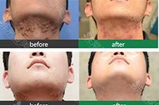 韩国哪家医院疤痕修复做的好?瘢痕疙瘩能彻底根治吗?