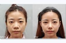 韩国Nano、trend、Cocoline隆鼻医院哪个好?隆鼻案例对比图有吗?