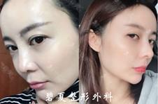 韩国cosharp整形医院名气大吗?隆鼻手术5天可以拆线吗?