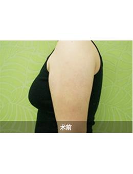 韩国4ever整形外科手臂吸脂手术对比案例