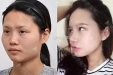 韩国GNG整形医院隆鼻手术好吗?无假体隆鼻是什么情况?