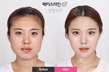 韩国轮廓手术后期维护常作这三件事:拉皮!回弹!面吸!
