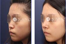 韩国隆鼻手术哪家医院效果好,多家医院特色+案例分享!