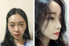 哪里鼻子整形好?韩国Thenan整形外科算吗?鼻整形案例有吗