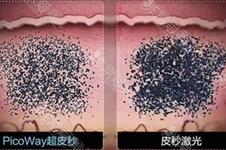 韩国皮肤管理好医院收录(五):科琳挞图洗纹身案例对比