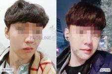"""韩国首尔整形医生排名曝光,名气大的不只有""""二朴"""""""