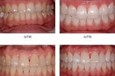 韩国安特丽armtree牙科怎么样?擅长哪些项目?