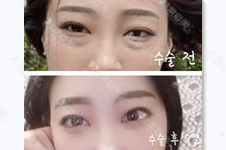 韩国去眼袋手术效果好吗?去眼袋手术能维持几年?