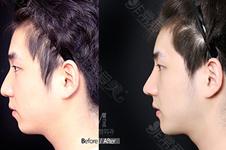 韓國下巴假體品牌分析貼:品牌大致相同但分有幾個型號!